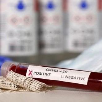 Diario Frontera, Frontera Digital,  TABAY, SANTOS MARQUINA, Páramo, ,Barrio Adentro entrega 140 test de COVID-19 a centros médicos de Tabay
